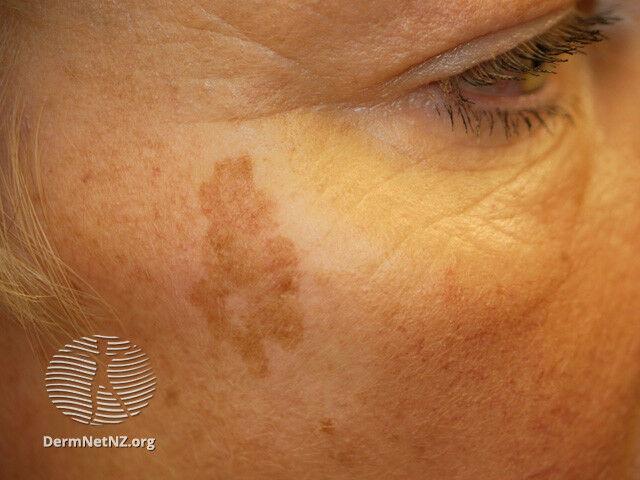 Solar lentigo az arcon